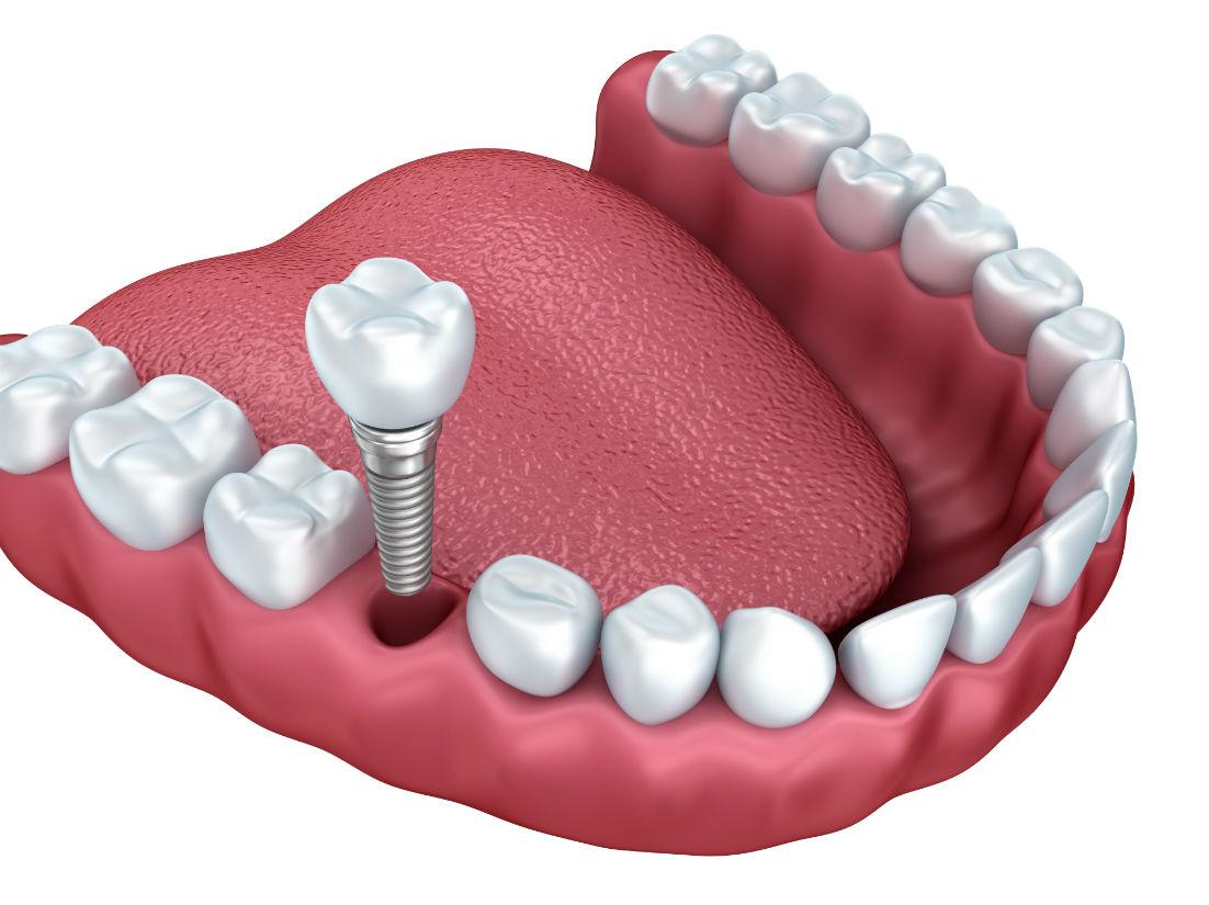 Dental Implants Yorkville IL