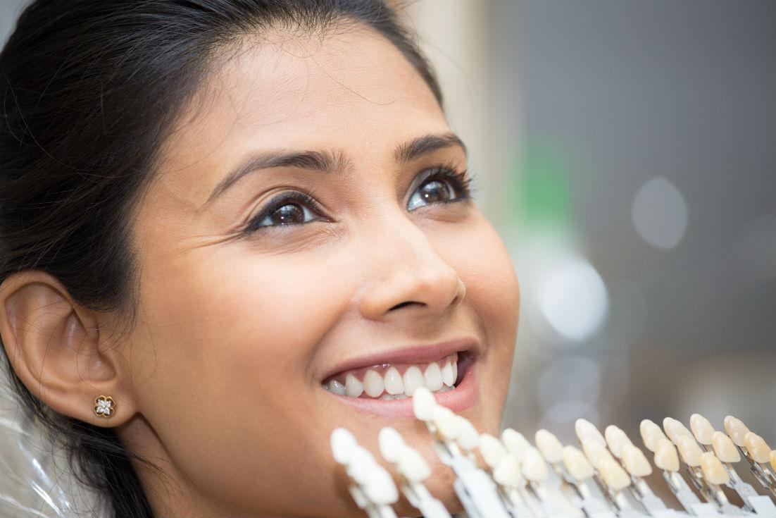 What are the Differences Between Dental Bonding and Veneers?