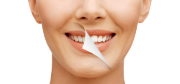Teeth Whitening Yorkville IL